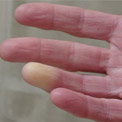 Whats the Difference Between Primary and Secondary Raynaud's?