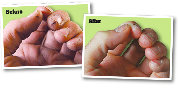 Before and After Hand Images
